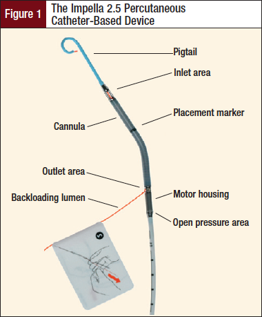 Figure 1: The Impella 2.5 Percutaneous Catheter-Based Device.